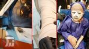 مصدومیت ۲۵لرستانی در آیین چهارشنبه سوری